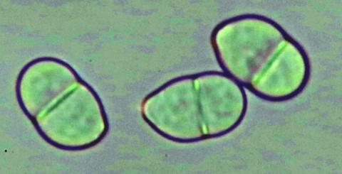 Споры трихотециума (Trichotecium roseum)